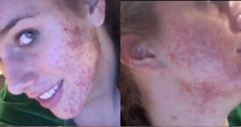 acne-makeup-girl